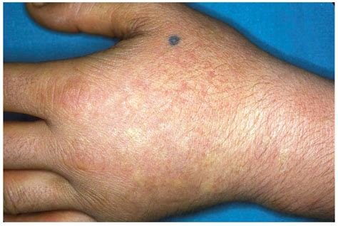 Porphyria Erythropoietic Deficiency Of Uroporphyrinogen
