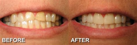 Before & After Photos Smile Makeovers  Cosmetic Dentist. Homeowners Insurance Washington Dc. Medical Marijuana Idaho Atlanta Clinical Care. Cisco Vpn 64 Bit Download Senior Help Button. In Patient Treatment For Eating Disorders. Schools In Bensalem Pa Hvac Air Duct Cleaning. Chicago Internet Service Provider. Average Foundation Repair Cost. Tennessee Softball Tournaments