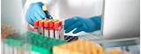 Ammonia blood test