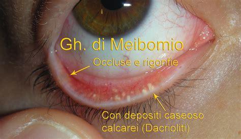 Orzaiolo Interno Palpebra Inferiore by Calazio Orzaiolo Meibomite Blefarite Dacrioliti Dott