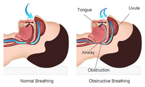 stop snoring stop breathing while apnea guide