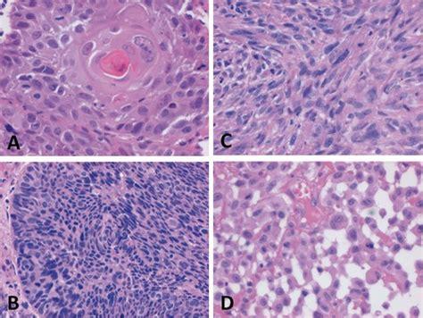 pathologie und histopathologische prognosefaktoren oraler