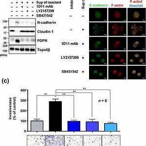 TGF-β/TGFβR signaling is involved in podoplanin-induced ...