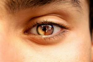sectoral heterochromia | It Can Be Anything | Pinterest