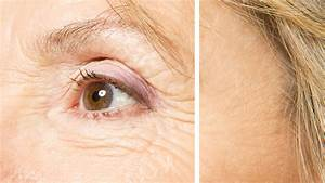 best way to reduce wrinkles