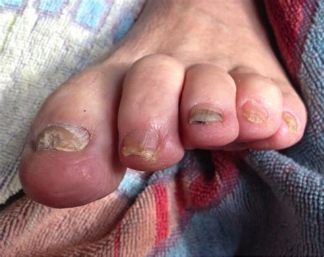 Fungal Toe Nails Purely Earth