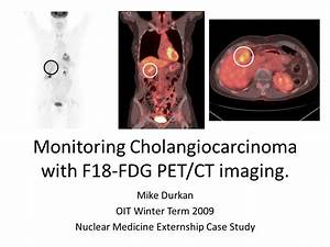 Monitoring Cholangiocarcinoma with F18-FDG PET/CT imaging ...