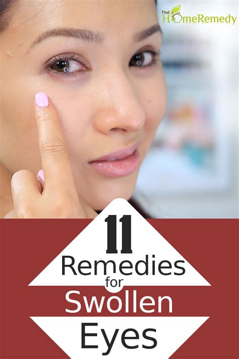 swollen eyes remedies eye cure remedy tea natural bags treatments mask hazel witch findhomeremedy chamomile