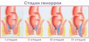 Метилурацил суппозитории от геморроя