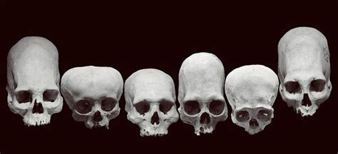 Every Human Skull Is A Beautiful Snowflake