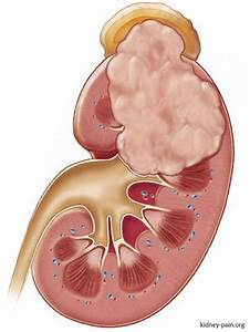 20 Best Kidney Pain Images On Pinterest