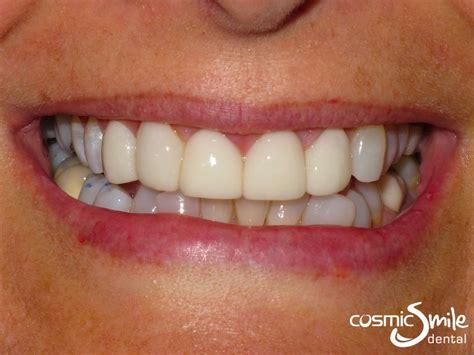 lumineers  sydney    cosmic smile dental