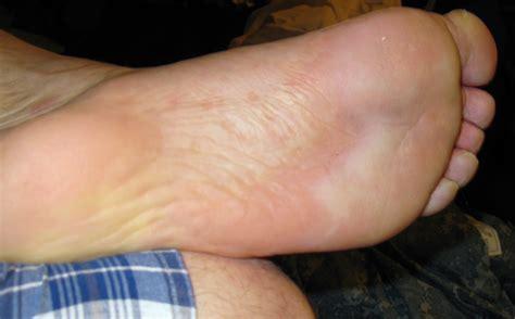 Feet Sweating Clip Free Hot Sex Teen