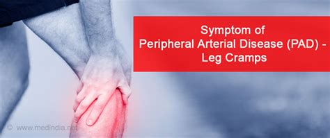 Peripheral Artery Disease (pad)  Causes, Symptoms. Billing Software For Medical Offices. Echocardiogram Of The Heart Back Pain Chart. Southern University Nursing Curriculum. Fashion Merchandising And Design. Family Therapist Degree Boca Raton Las Vegas. What Is A Heart Transplant Ft Lewis College. Pool Supplies Allentown Pa Labor Law Florida. Historical Company Financial Data