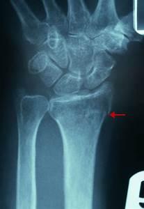 Distal Radius Fractures - Injuries  Poisoning