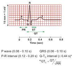 1000 ideas about qrs complex on cardiac