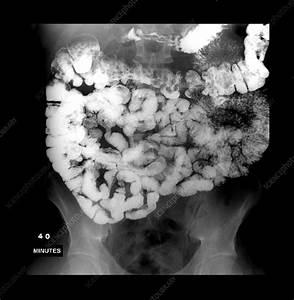 Normal Small Bowel Series - Stock Image - C003  4578