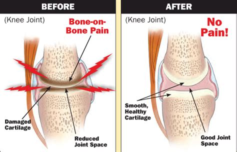 pin  knee pain