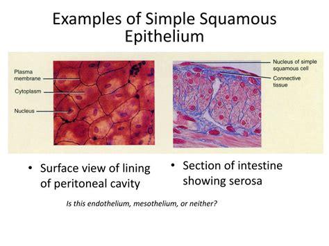 Ppt Simple Squamous Epithelium Powerpoint Presentation