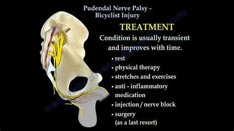 Pudendal Nerve Palsy Bicyclist Injury Everything You
