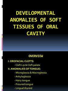 Developmental Anamolies Of Soft Tissues Of Oral Cavity