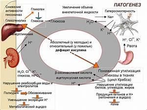 Атеросклероз при диабете лечение