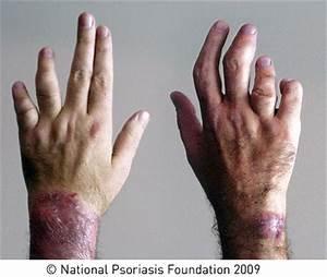 Reumatoïde artritis psoriasis