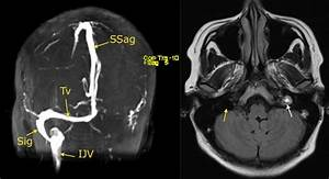 Venous sinus thrombosis - Radiology at St. Vincent's ...
