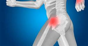 Common Causes For Hip Pain