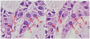 Fluorescence In Situ Hybridization Of Chromosome 17