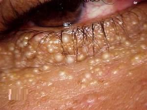 Milia - Removal, Treatment, Causes, Pictures, Symptoms ...