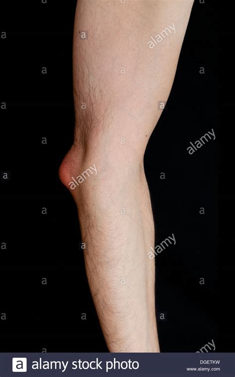 Arm Bursitis Stockfotos & Arm Bursitis Bilder - Alamy