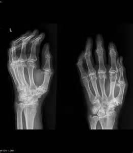 Juvenile idiopathic rheumatoid arthritis - Image - Radiopaedia.org  Juvenile Rheumatoid Arthritis Rheumatoid Arthritis
