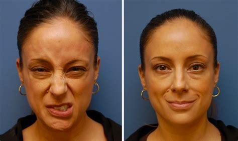 facial paralysis therapy