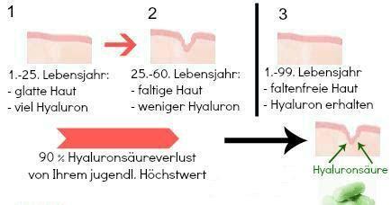 buttersäure gegen maulwurf erfahrungen hyalurons 228 ure kapseln kaufen hyaluron hochdosiert im