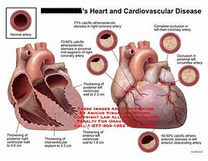 Amicus Illustration Of Amicus Medical Heart Cardiovascular