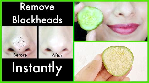 magic remedy to remove blackheads from nose at home