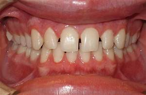 Spacing Before and After Braces Pictures | McCormick ...