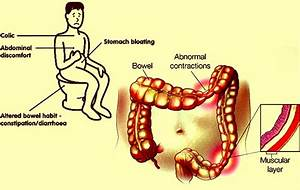 Ibs Pain Location, Ibs, Get Free Image About Wiring Diagram