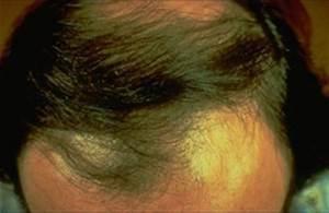 Hair Loss American Academy Of Dermatology