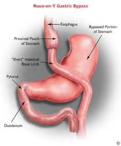 Gastric Bypass Animated Video  Rouxeny (rny)  In A. Polk County Criminal Defense Attorney. How Does Life Alert Work Money Transfer Brazil. Dental Solutions Odessa Tx How Create Website. Borrow Against Your Car Plumbers In Pittsburgh. Dog Walking Service Nyc College Music Journal. Youtube Learning Chinese Design Approval Form. Best Project Management Practices. Performance Management Review Process