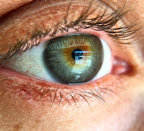 what does my eye color say about me i got a pterygium cut out of my eyeball and i learned