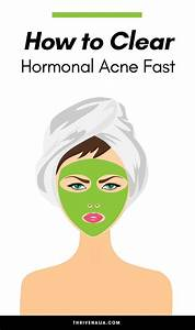 How To Clear Hormonal Acne Fast  Complete Guide