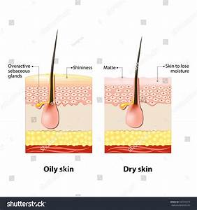 Oily Dry Skin Different Human Skin Stock Vector 540746974