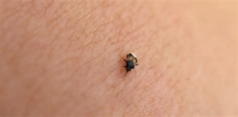 Tiny Bugs With A Big Bite!  Home Wise! Family Smart