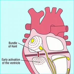 Junctional Tachycardias