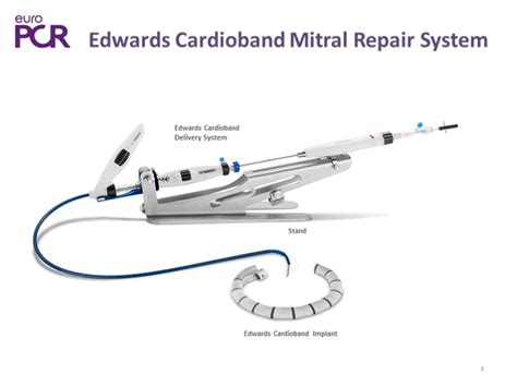 Cardioband: clinical reality for mitral and tricuspid ...
