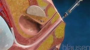 Female External Genital Organs