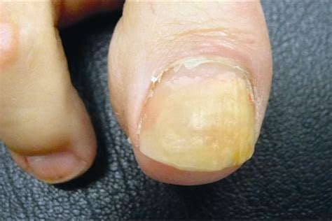Toenail Separating From Nail Bed by A Day In The Life Of A Nail Doctor Health Nails Magazine