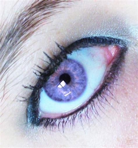 Rare Violet Eye Color in Humans